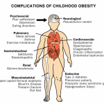 Childhood Obesity Awareness Month: The Hispanic Community