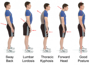 Bad-Posture-Examples
